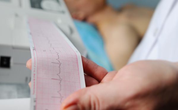 Actualización en electrocardiografía para el diagnóstico y tratamiento de las arritmias – ISBN: 978-84-494-5322-9