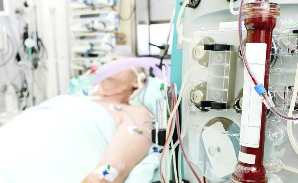 Ajuste en el paciente crítico. Técnicas depuración extracorpórea – ISBN: 978-84-494-5300-7