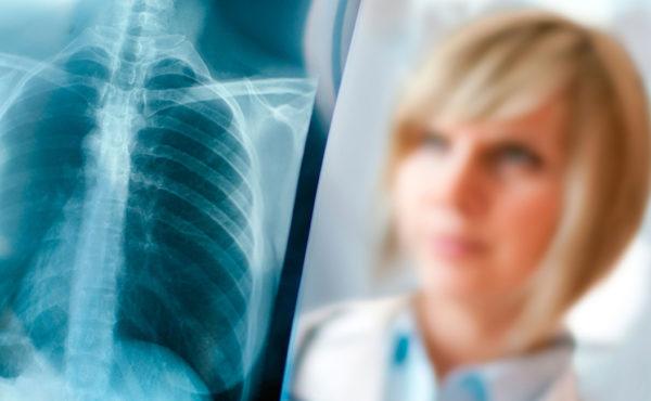 Radiología pediátrica. Indicaciones, técnicas y optimización – ISBN: 978-84-494-5238-3