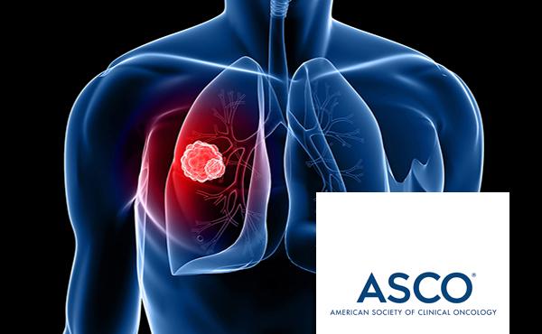 Cáncer de pulmón. Actualización y tendencias futuras ISBN: 978-84-494-5387-8